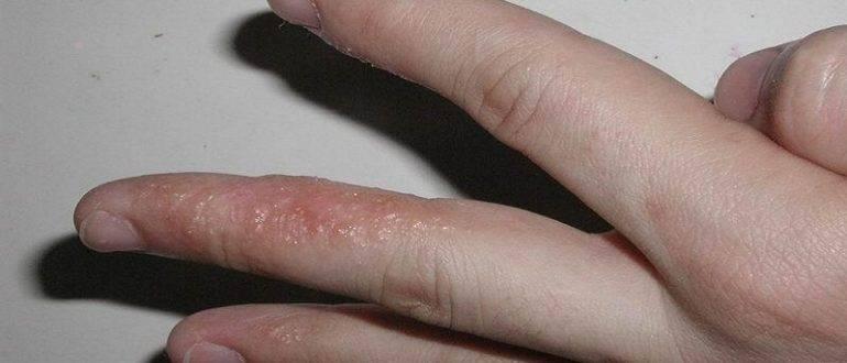 Маленькие водянистые пузырьки на пальцах рук