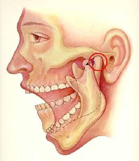Почему сводит челюсть, причины и лечение