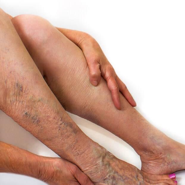 Микробная экзема на ногах: описание, история болезни, проявление и способы лечения