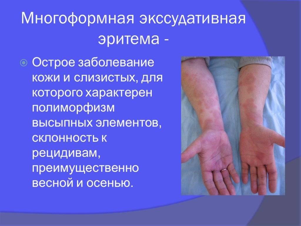 Многоформная экссудативная эритема: что это такое, классификация, симптомы, возбудители заболевания, диагностика патологии, способы лечения