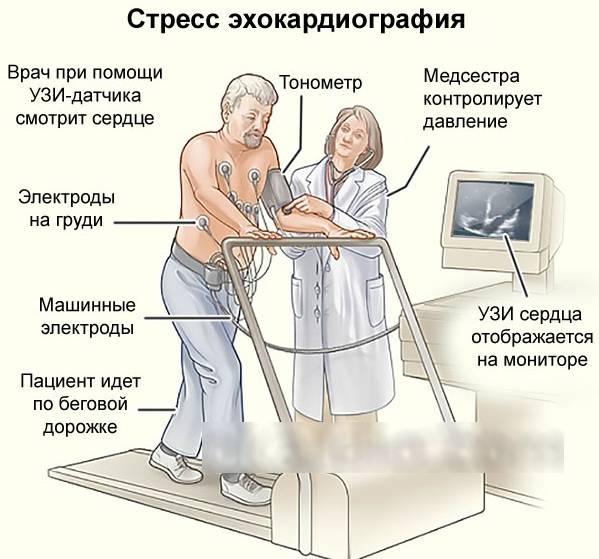 Нормы эхокардиографии, расшифровка показателей эхо кг сердца у взрослых