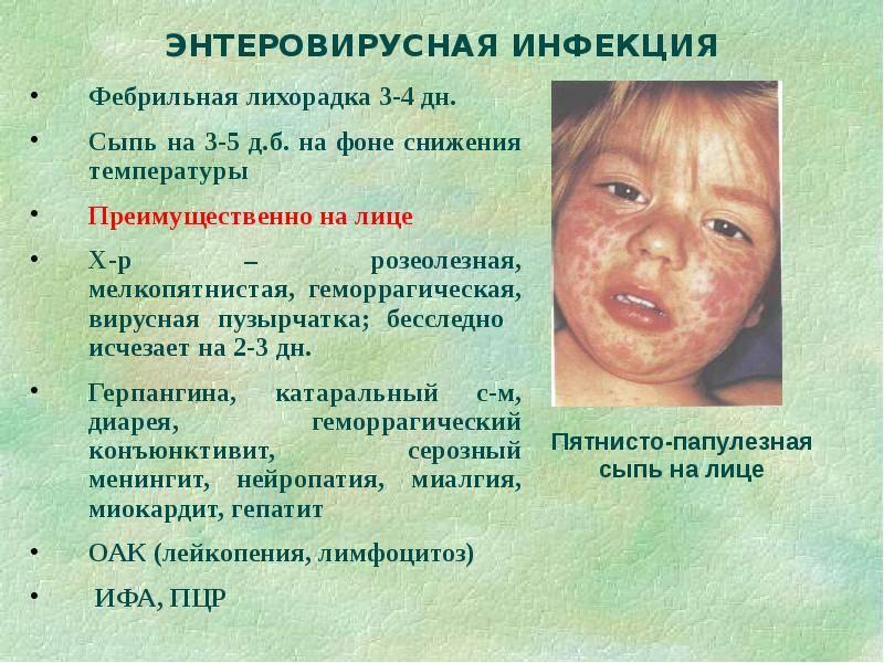 Энтеровирусная инфекция у детей: симптомы и лечение в домашних условиях. комаровский рекомендует
