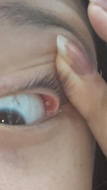 Внутри глаза белый прыщик