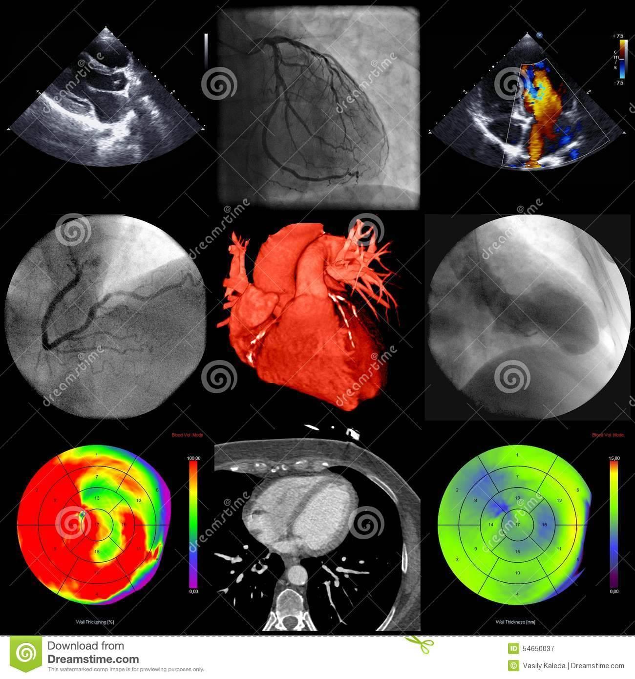 Что такое кт органов брюшной полости с контрастом и для чего его делают? учимся правильно готовиться к процедуре