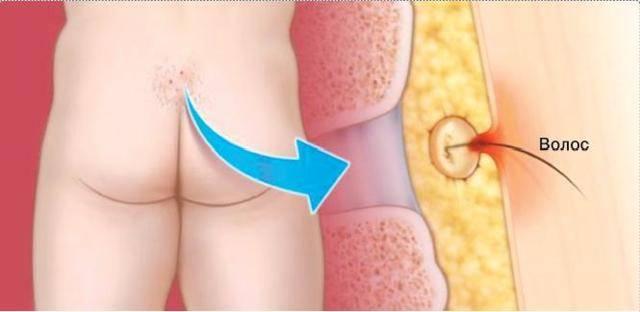Оперативное лечение кисты при воспалении копчика