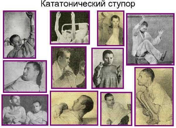 Кататоническая шизофрения - симптомы и лечение