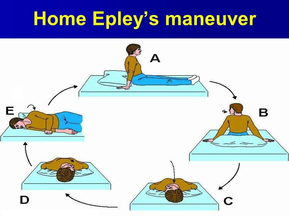 Маневр эпли и семонта: упражнения брандта-дароффа при лечении головокружения