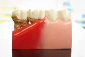 Как лечить парадонтоз: какие лекарства и народные средства помогают, как спасти зубы и советы стоматологов