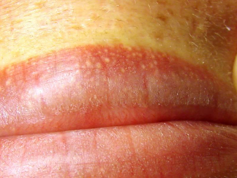 Может быть из за простатита на головке члена красное пятно вены из за простатита