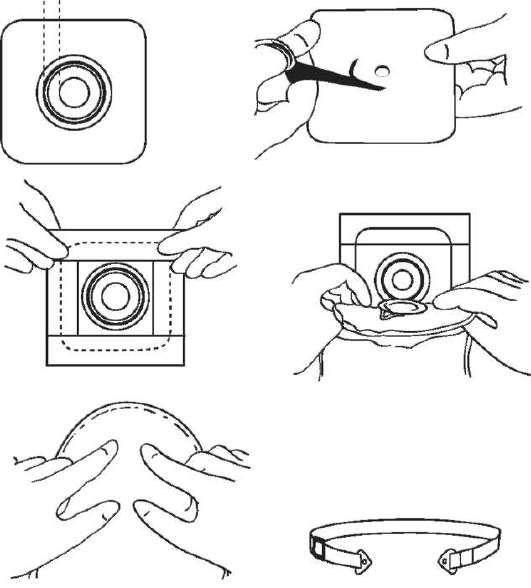Уход за илеостомой или колостомой | memorial sloan kettering cancer center