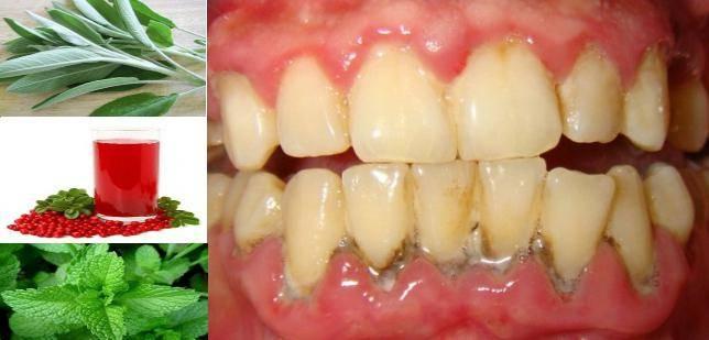 Парадонтоз: как спасти зубы, какие лекарства и народные средства помогают?