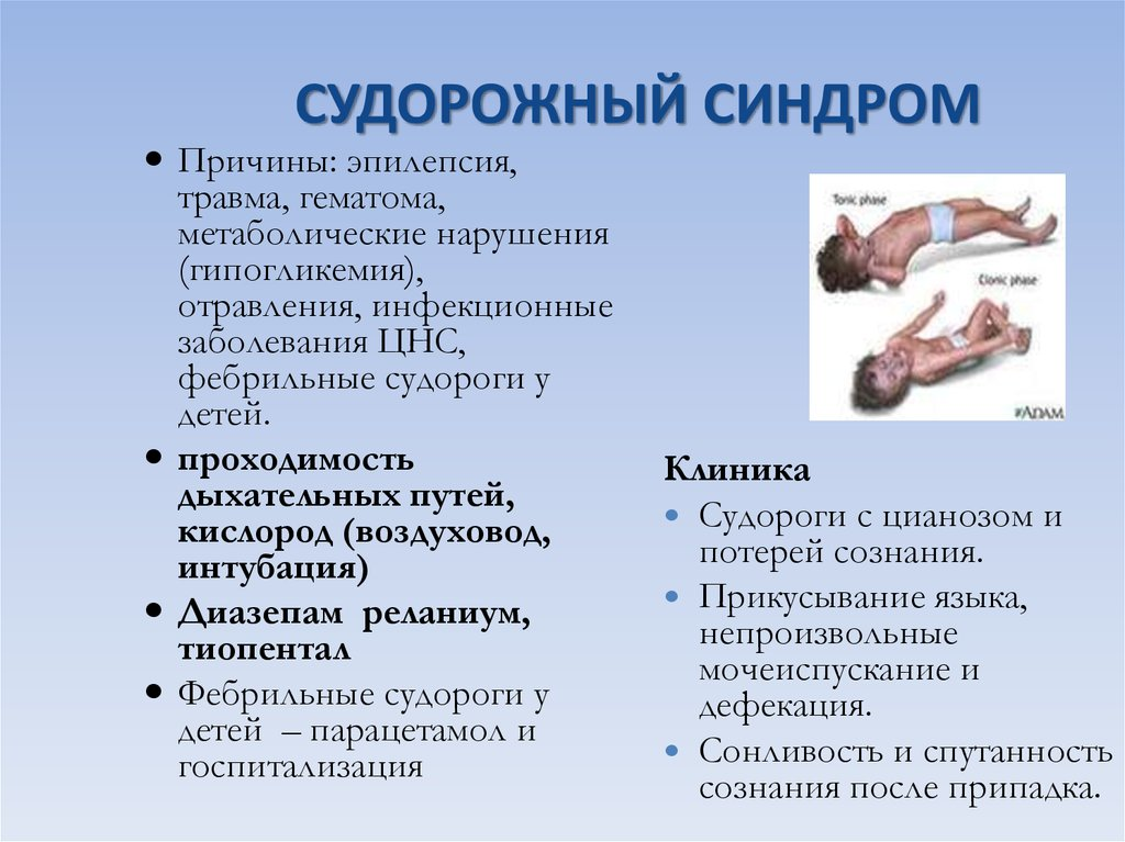 Эпилепсия у ребенка. причины, симптомы, лечение и профилактика эпилепсии | здоровье детей