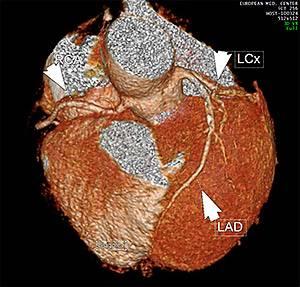 Мультиспиральная компьютерная томография коронарных артерий