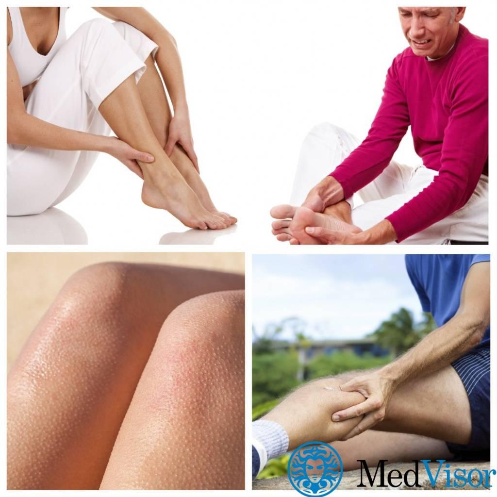 Синдром беспокойных ног - причины и лечение, профилактика