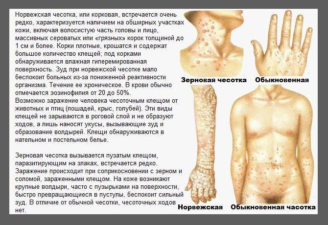 Чесоточный клещ (sarcoptes scabiei) – возбудитель чесотки: как выглядит, симптомы, как поставить диагноз и как лечить в домашних условиях