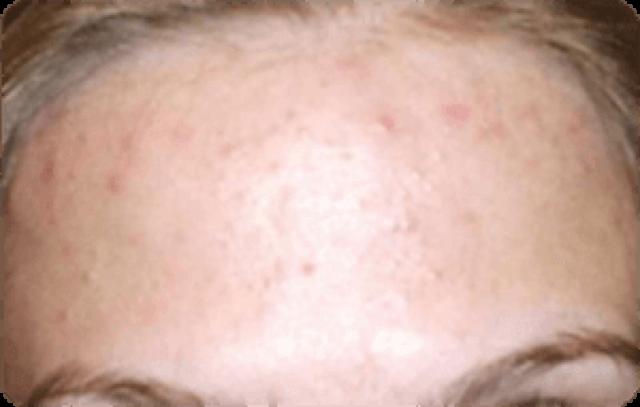Мелкая сыпь на подбородке у женщин - причины и лечение красных прыщиков