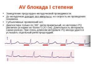 Что такое замедление внутрижелудочковой проводимости?