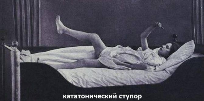 Продолжительность, причины и лечение ступора