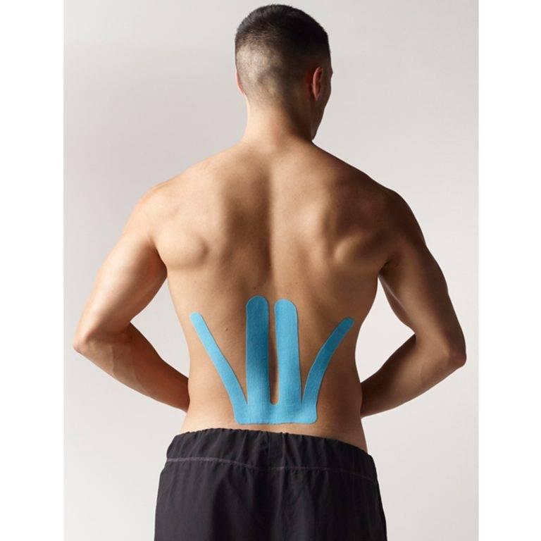 Тейпирование спины, поясничного отдела