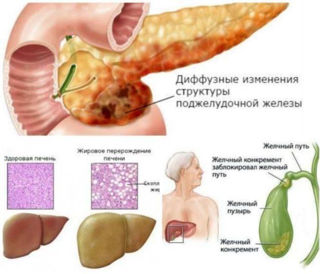 Диффузные изменения паренхимы печени и поджелудочной железы: лечение, признаки