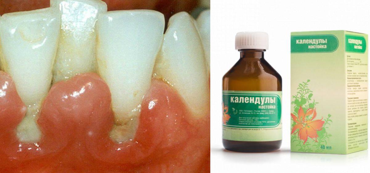 Пульпит: лечение зуба в домашних условиях как снять боль народными средствами?