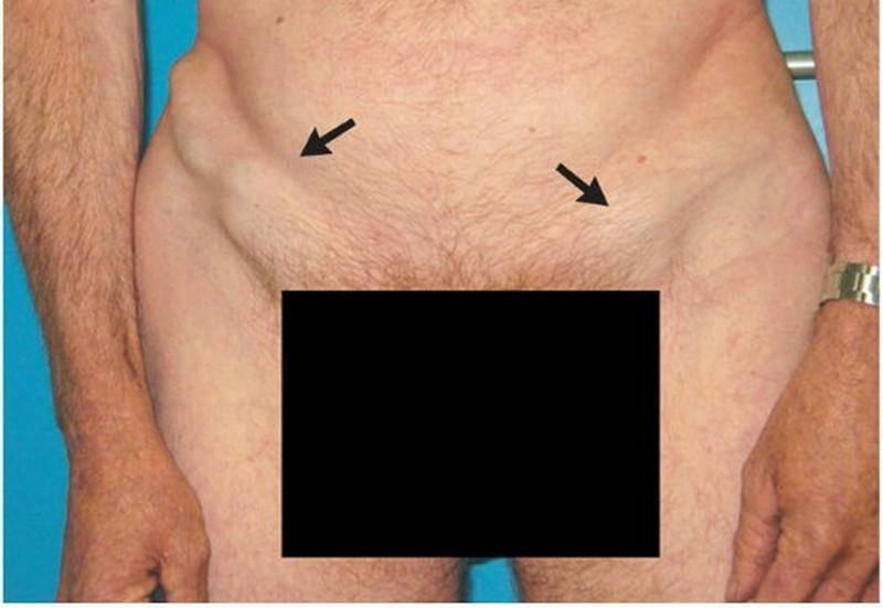 увеличение паховых лимфоузлов у мужчин при половых инфекциях