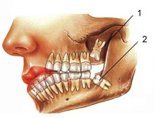 Почему сводит челюсть (скулы на лице) - 5 причин онемения
