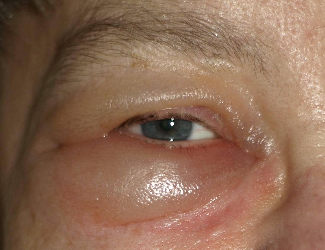 6 причин отёков вокруг глаз и ваши ошибки в домашнем уходе