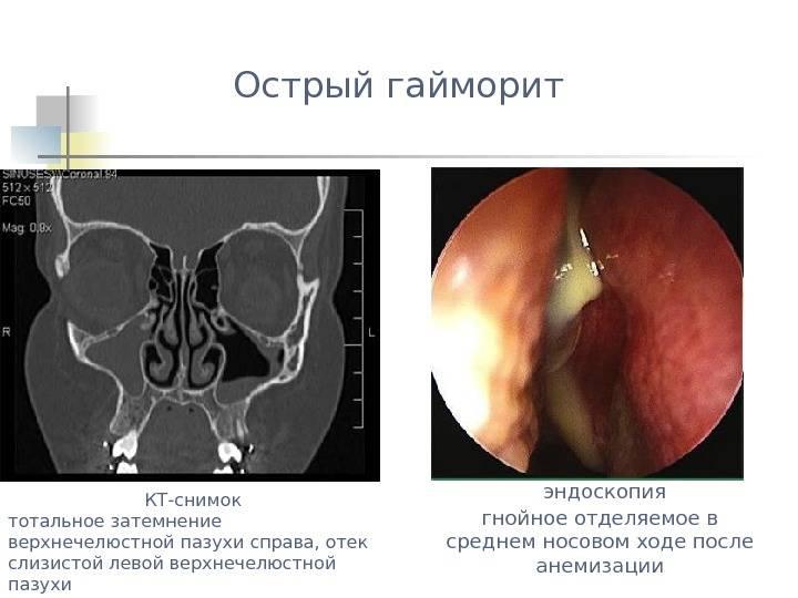 Катаральный синусит: симптомы, способы эффективного лечения