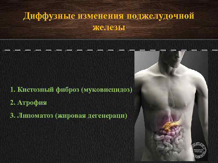 Диффузные изменения паренхимы поджелудочной железы: что это такое, признаки, как лечить