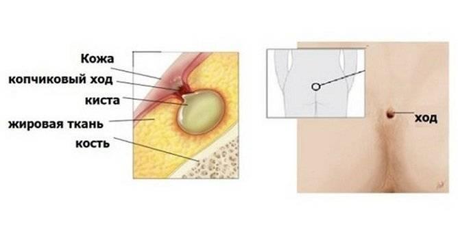 Виды операций кисты копчика и послеоперационный период