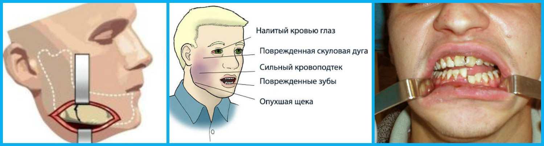 Основные причины от чего может сводить челюсть