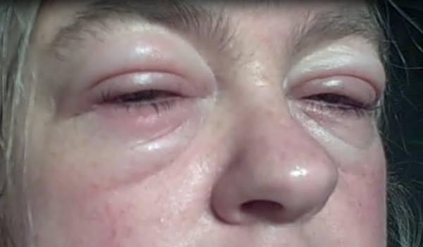 Простатит отекает лицо простатит лечение подольск