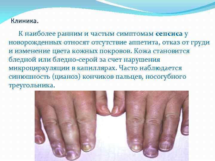Сепсис - симптомы, лечение, причины, формы у детей и взрослых
