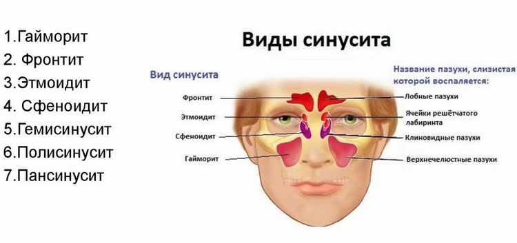 Синусит симптомы и лечение у взрослых в домашних условиях хронический