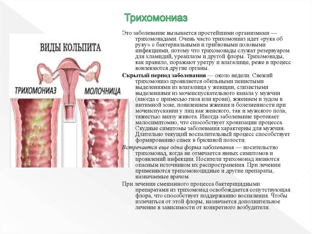 Трихомоноз у женщин: симптомы и лечение, мужчин, признаки, как лечить