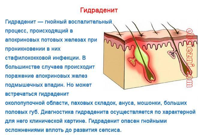 Лечение чирей под мышкой в домашних условиях