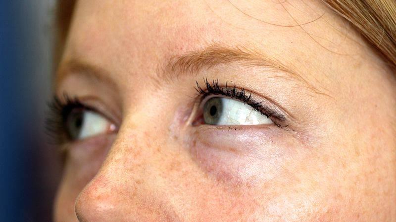 Отекают глаза по утрам – причины, как снять отек