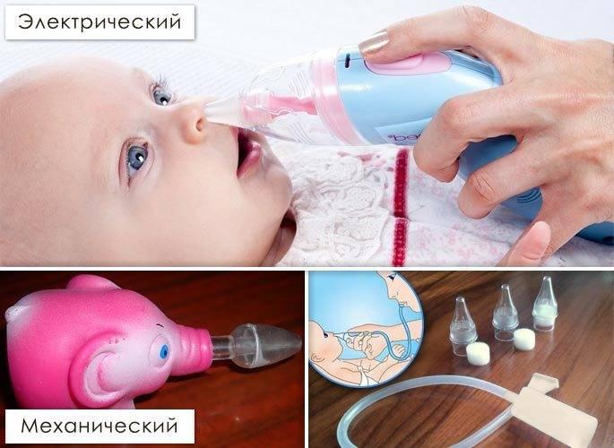 Применение физраствора (натрия хлорида) при насморке у детей