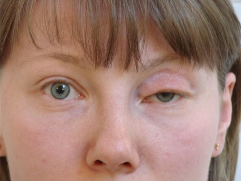 Почему отекают верхние веки глаз после сна: причины отека верхних век по утрам   медицинский портал spacehealth