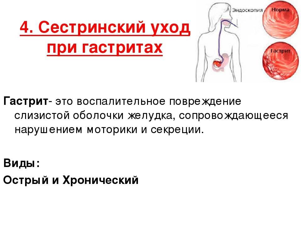 Жалобы пациентов при гастрите