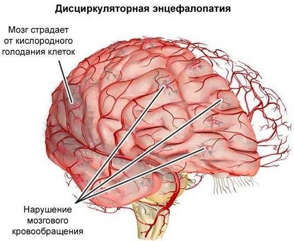 Энцефалопатия головного мозга у новорожденных детей
