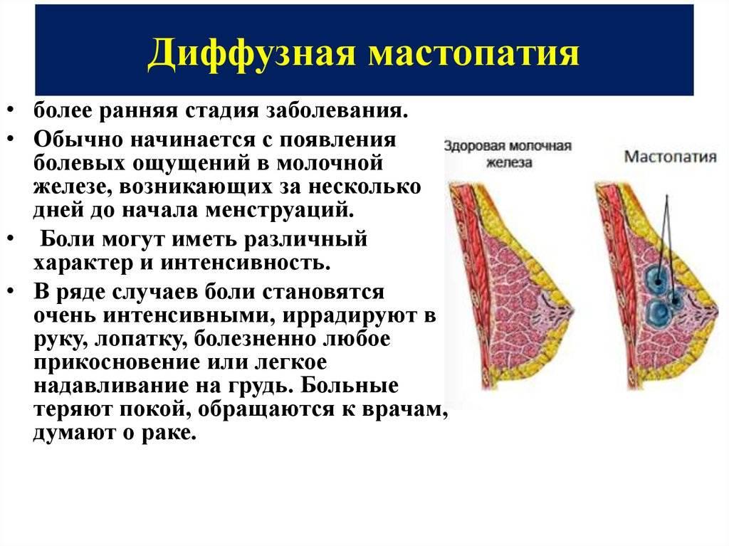 Мастопатия молочных желез признаки и симптомы и лечение при климаксе