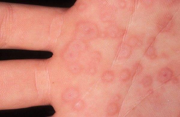 Многоформная экссудативная эритема - фото и лечение болезни