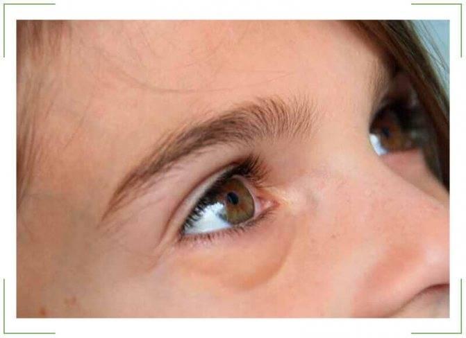 Как убрать отеки под глазами? (#проверенные методы)