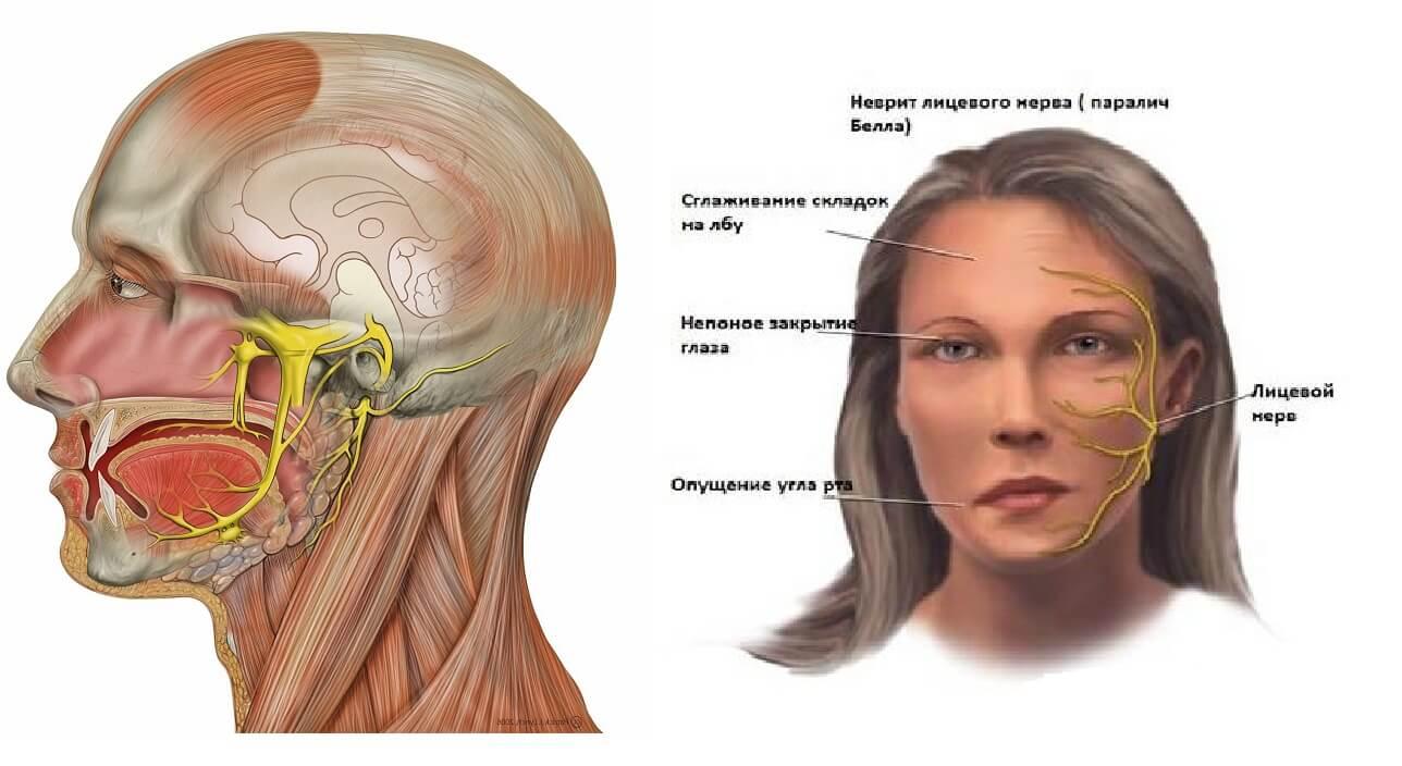 Неврит плечевого нерва: как быть, когда рука болит?