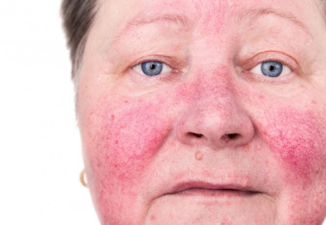 Цинковая мазь при розацеа на лице - умный доктор