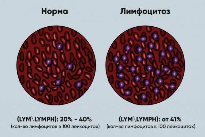 Лимфоциты повышены у ребенка в крови: причины лимфоцитоза