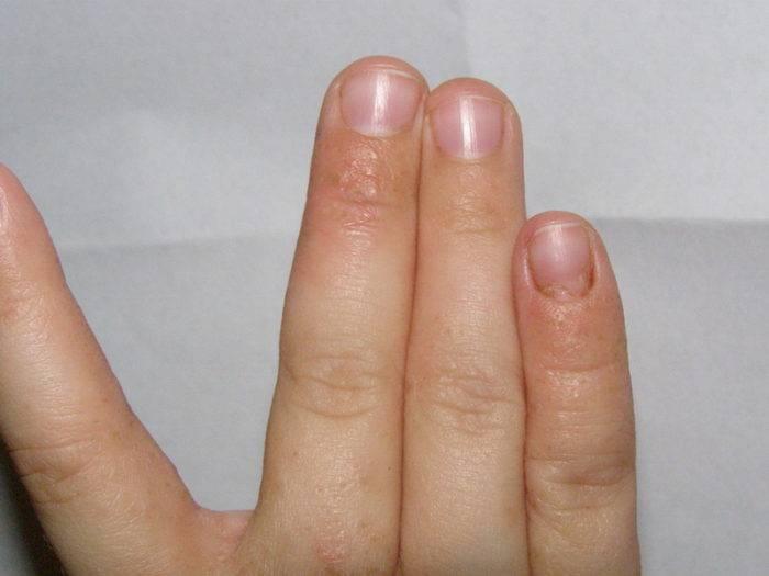 Прыщи на пальцах рук: фото, причины и как избавится