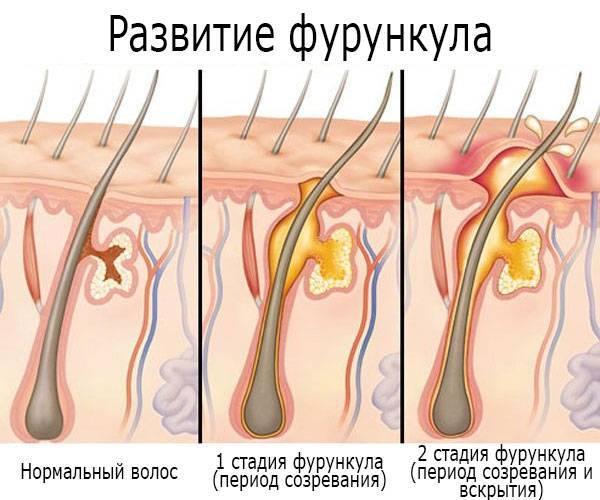 Фурункул под мышкой: причины появления, чем лечить чирей в домашних условиях